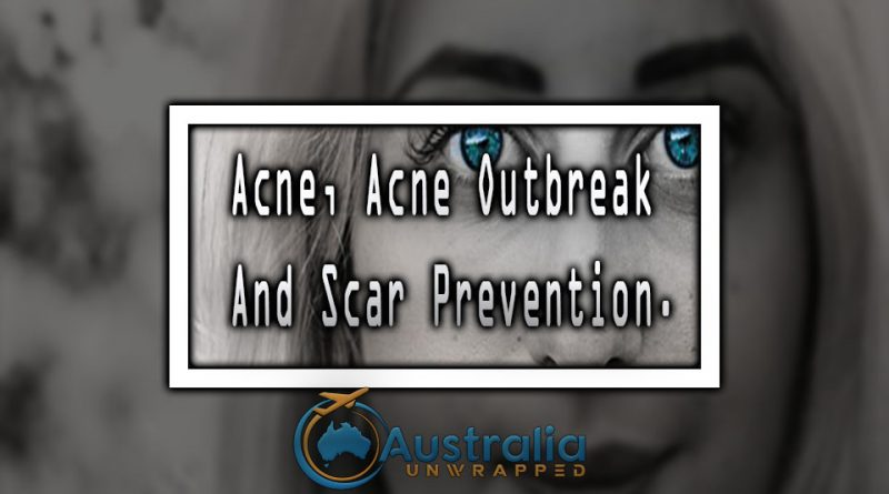 Acne, Acne Outbreak And Scar Prevention.